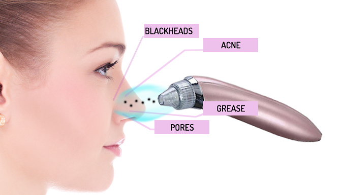 4-in-1 Pore Cleansing Blackhead Vacuum - 2 Colours.